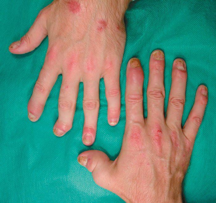 Псориатический артрит пальцев рук