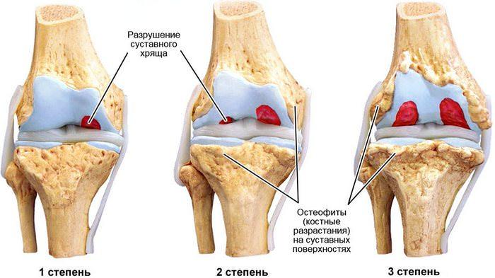 Степени артроза коленного сустава