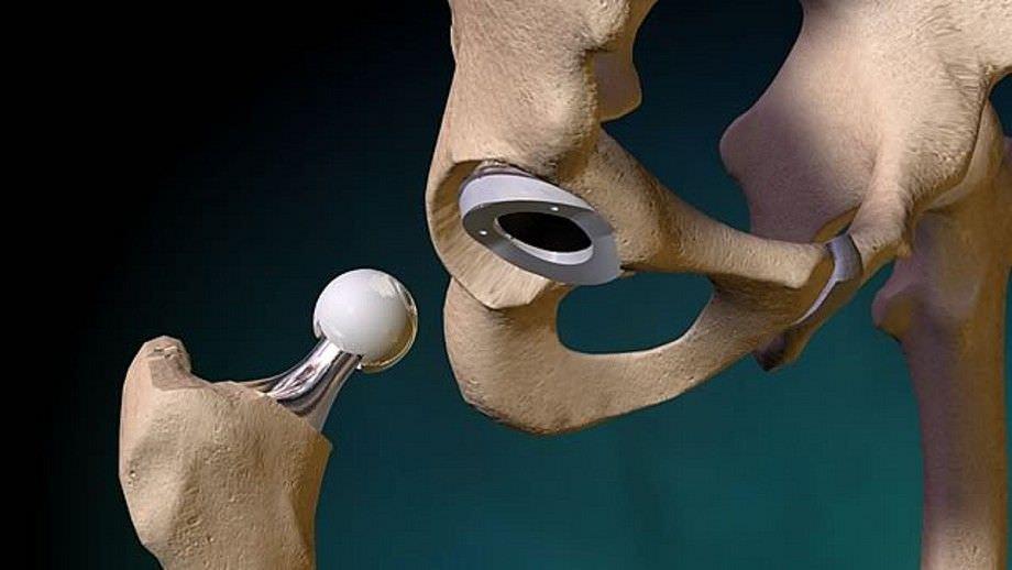 Боль в паху после эндопротезирования тазобедренного сустава