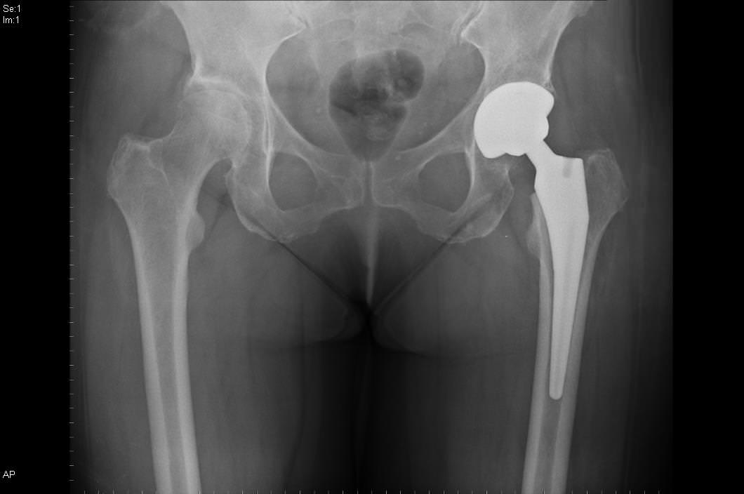 Рентгенограмма таза
