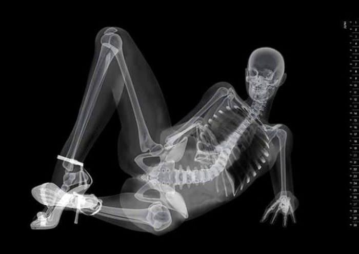 Рентген костей таза и тазобедренных суставов