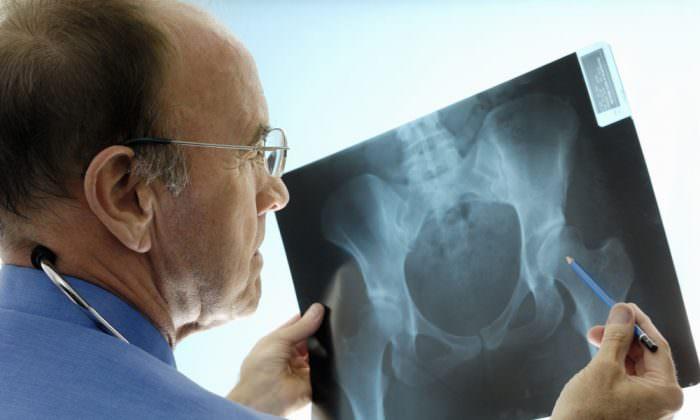Рентгенография тазовых костей