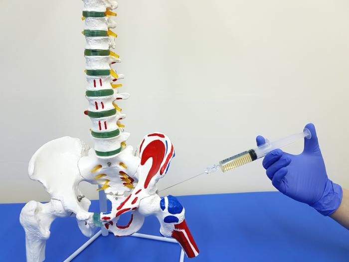 Как выполняется блокада тазобедренного сустава техника операции и используемые препараты