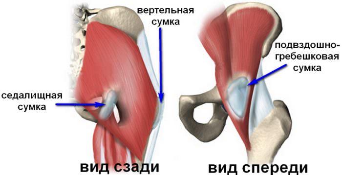 Боль в районе тазобедренного сустава