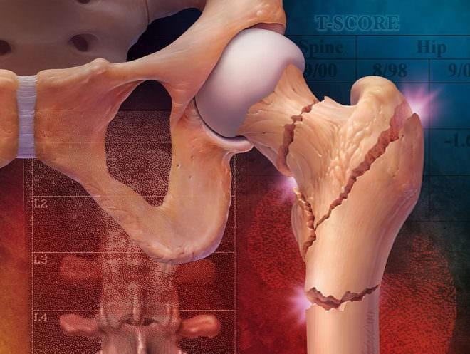 Перелом большого вертела бедренной кости у пожилых