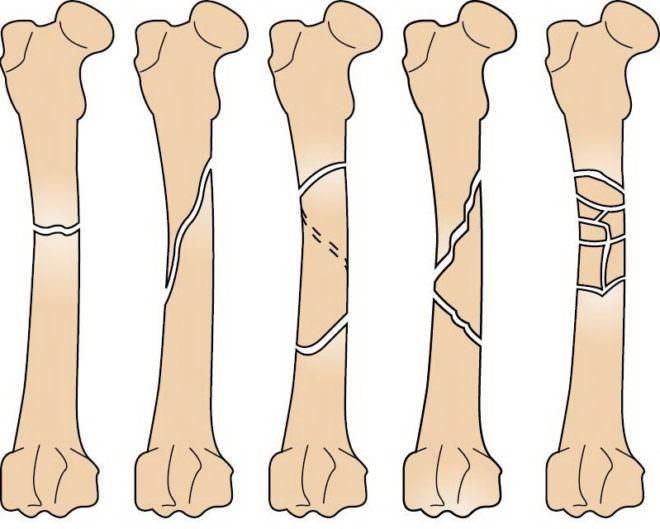 Виды поражения бедренных костей