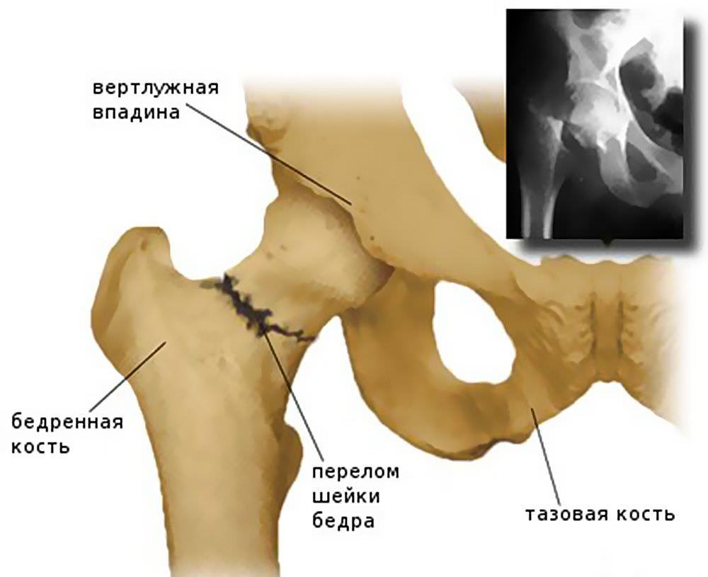 Перелом