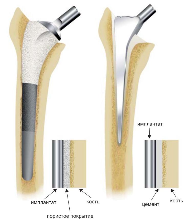 Цементная и бесцементная фиксация протезов