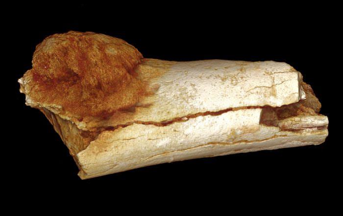 Энходрома костей