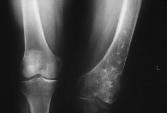 Рентген опухоли костной ткани