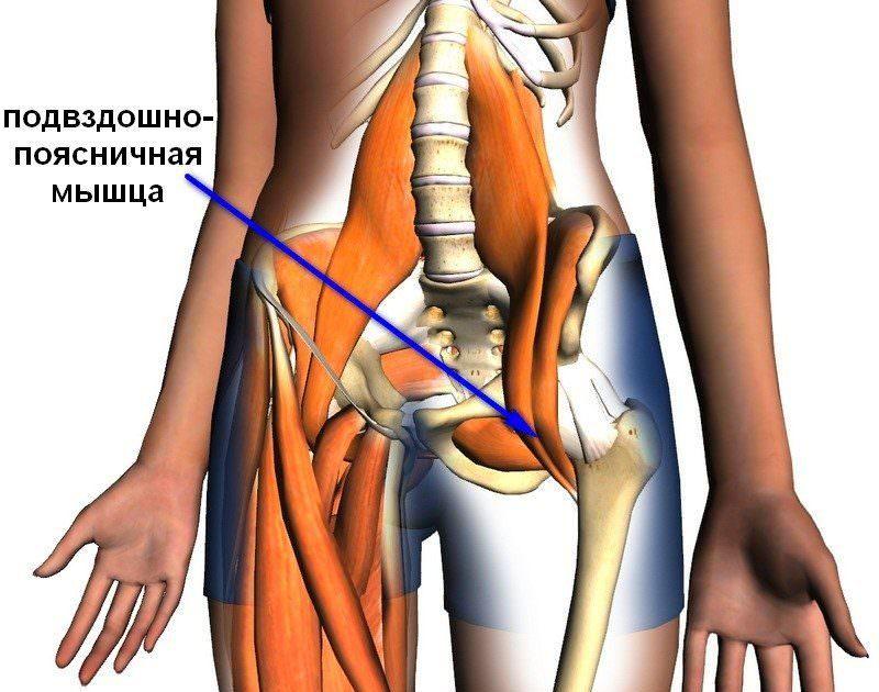 Синдром подвздошно-поясничной мышцы