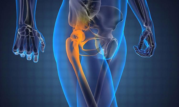 Виды суставов тазобедренных суставов