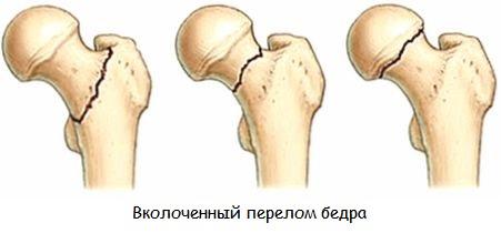 Вколоченный перелом шейки бедра