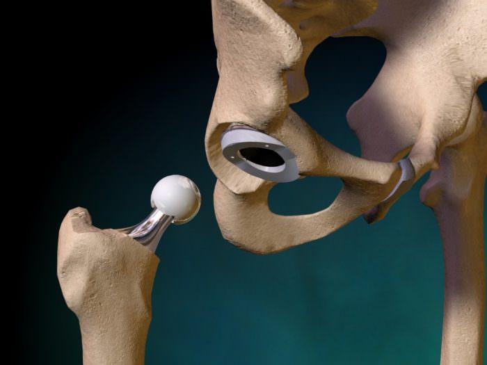Квоты на операции по замене суставов