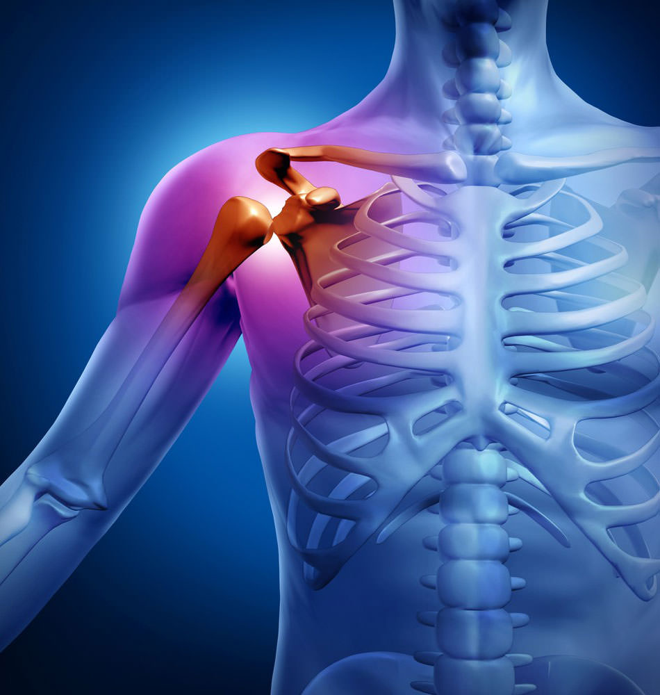 Схема больного плеча