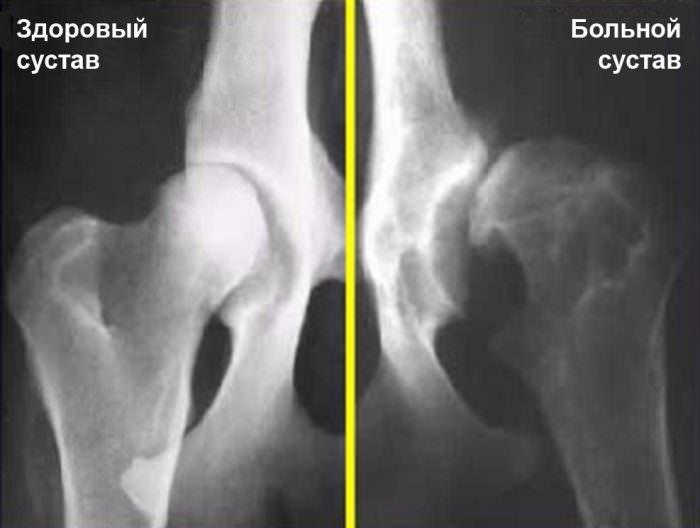 Диагностика патологий костей таза