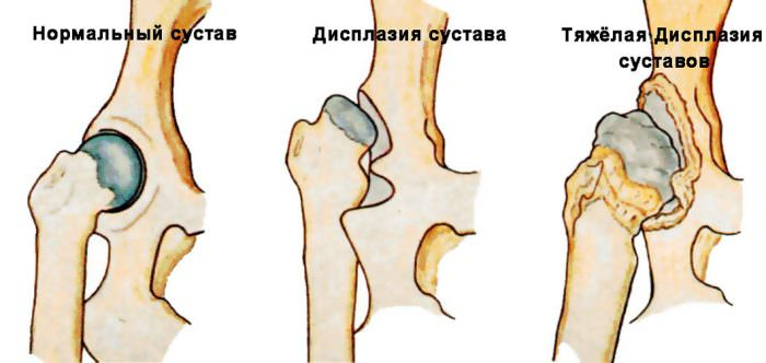 Двусторонняя дисплазия тазобедренных суставов симптомы