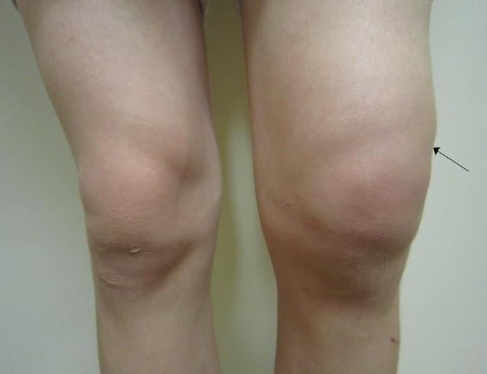 Много жидкости в коленном суставе ортез для локтевого сустава orlett
