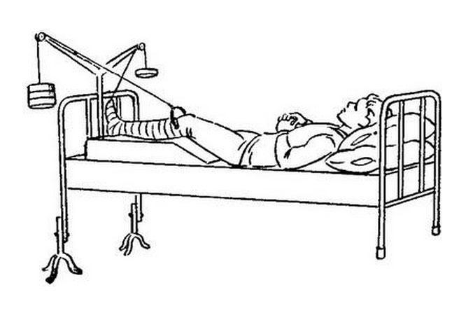 Изображение - Упражнения после перелома тазобедренного сустава gimnastika-dlja-tazovyh-kostej2