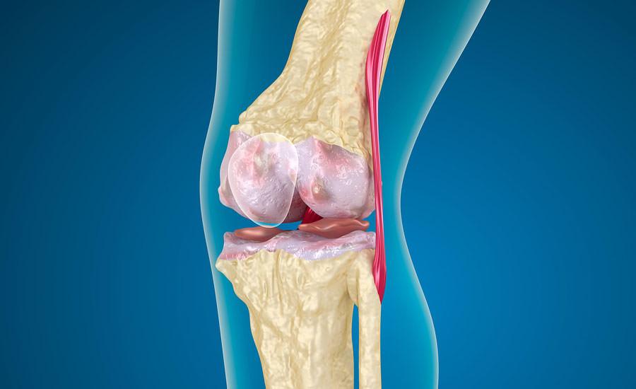 Как лечить пателлофеморальный артроз коленного сустава