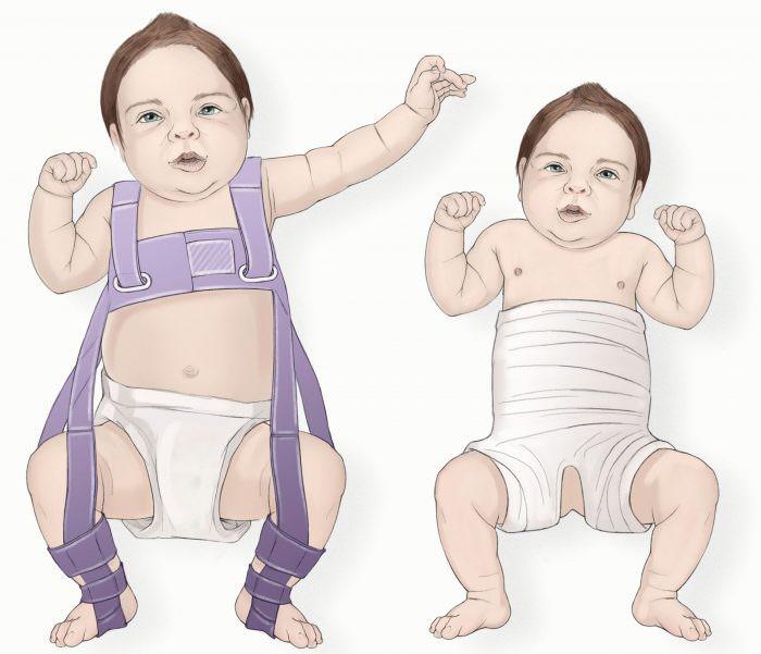 Пеленание ребенка при патологии бедра