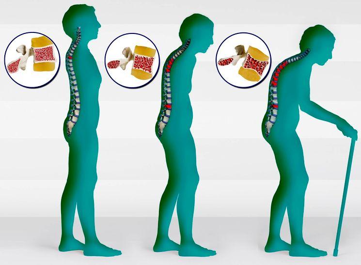 течение остеопороза