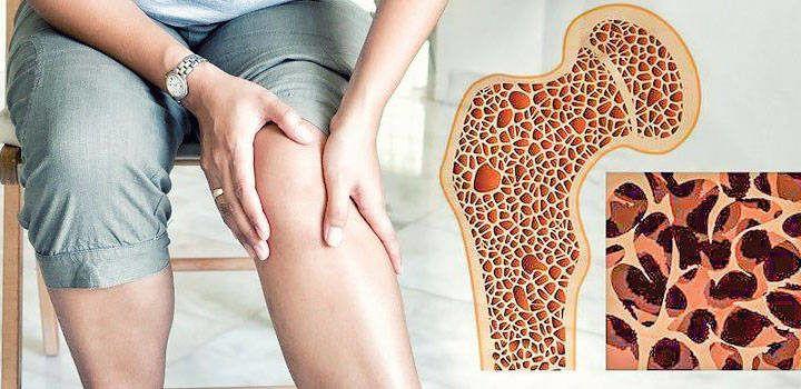 Можно ли вылечить остеопороз позвоночника народными средствами