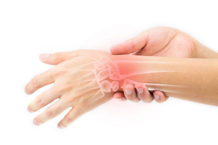 Боль в суставе руки синовит
